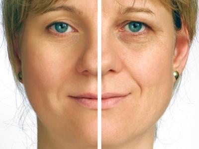 Cara Mengencangkan Kulit Wajah Setelah Diet